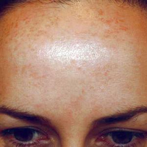 a-anti-pigmentation-skin-system-I