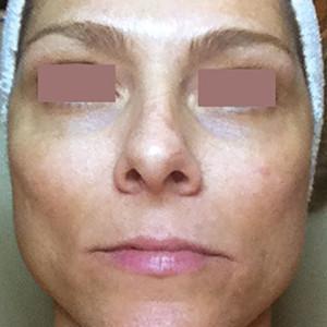 a-anti-pigmentation-skin-system-III-1