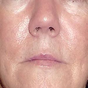 a-rosacea-skin-system-I-1