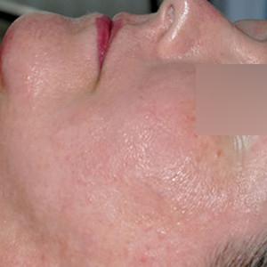 a-sensitive-skin-system-II