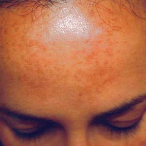 b-anti-pigmentation-skin-system-I