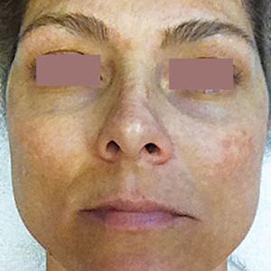 b-anti-pigmentation-skin-system-III-1