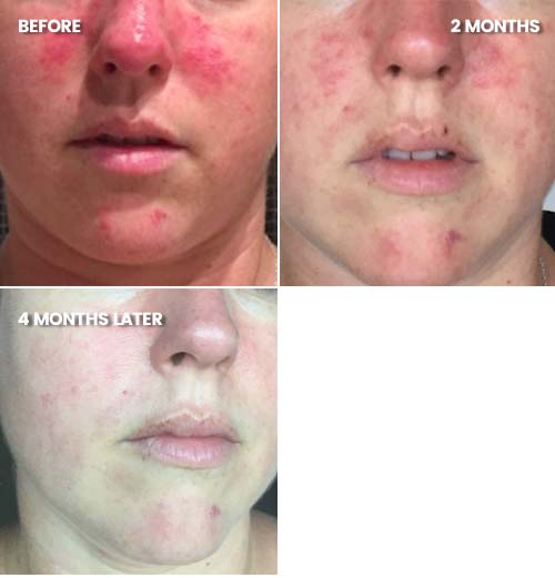 Rosacea, redness and acne reduced