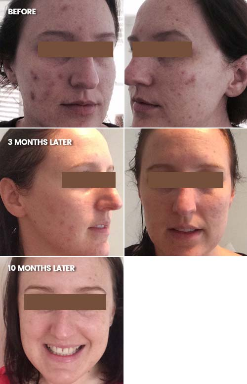 Significant reduction in acne scarring