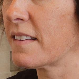 a-anti-pigmentation-skin-system-II