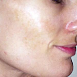 a-anti-pigmentation-skin-system-III-2