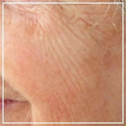 Aging skin treatment