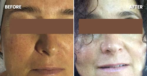 Ageing / sun damage / hyperpigmentation