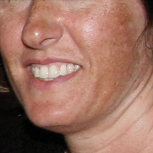 b-anti-pigmentation-skin-system-II