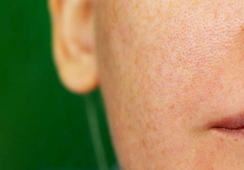 Enlarged facial pores