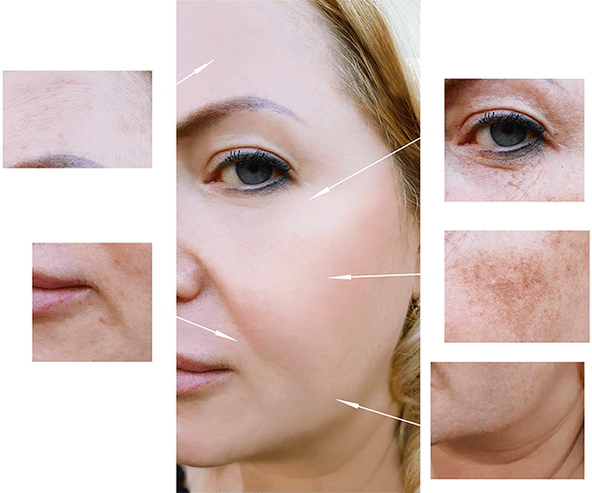 Hyper pigmentation and discolouration