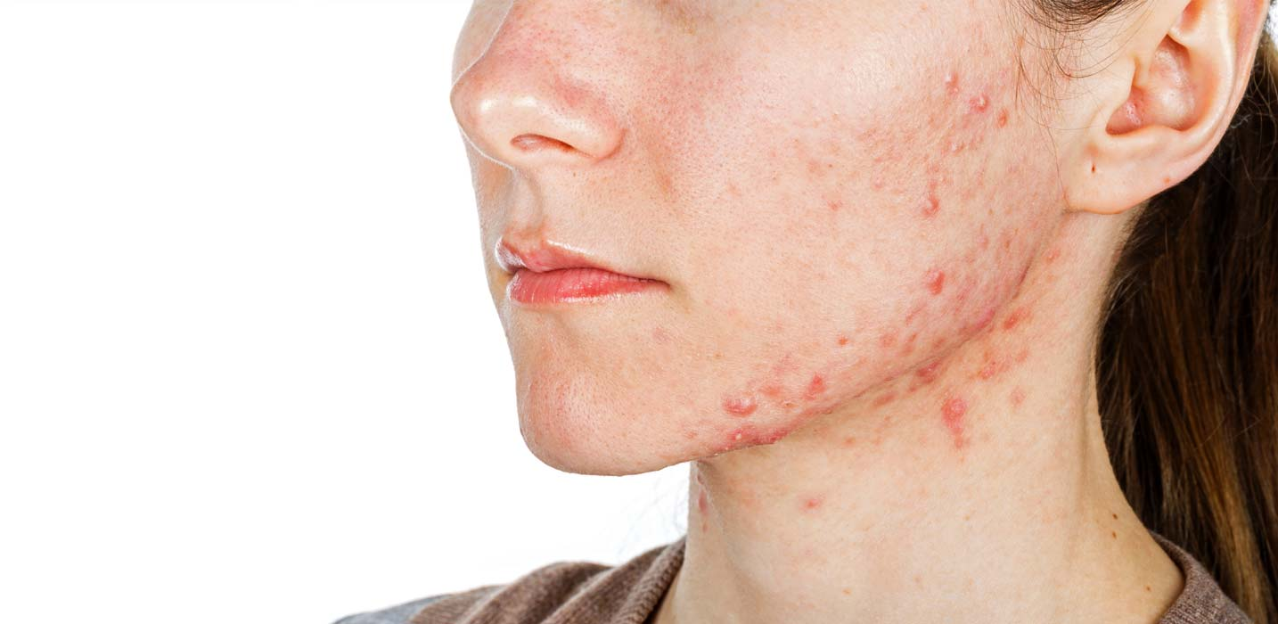 Acne, oily skin, pimples and whiteheads