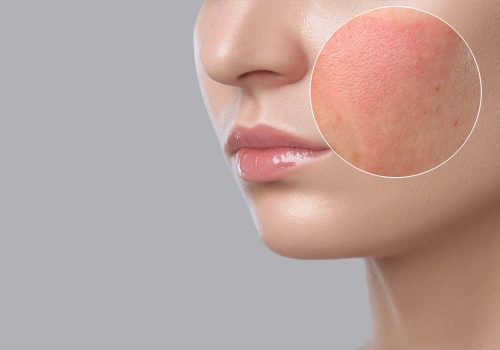 Sensitive Skin, Rosacea Skin treatment and diagnosis