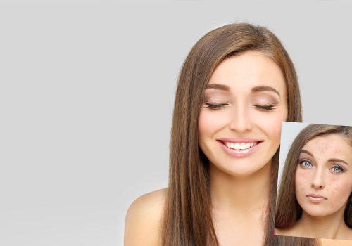 Natural Skincare case studies