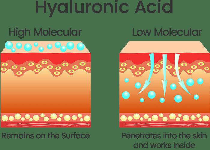 Who should useHyaluronic Acid?