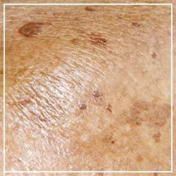Hyperpigmented skin natural treatment