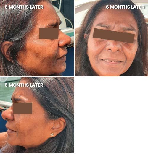 Hyper-pigmentation reduction